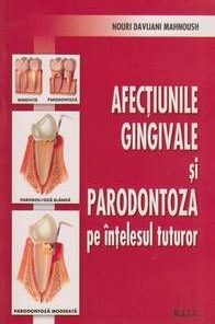 Afectiunile gingivale si paradontoza